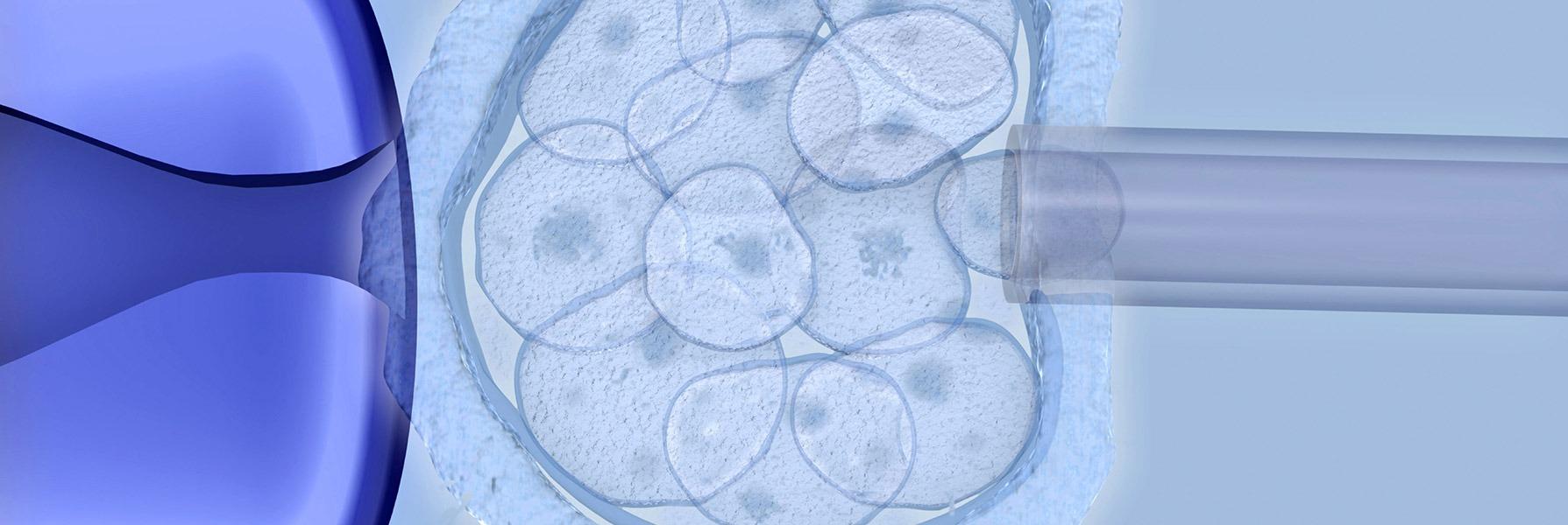 Προεμφυτευτική Γενετική Διάγνωση (PGD)