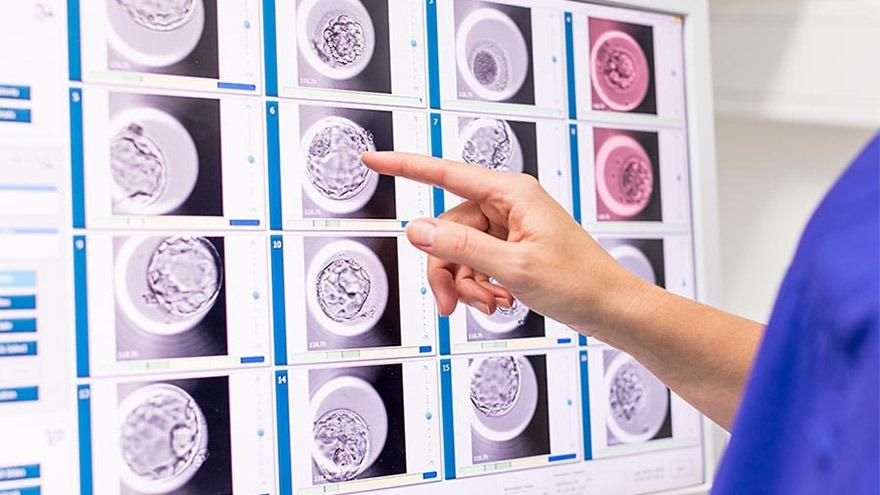 embryoscope-time-lapse